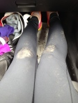 My knees, post fall.