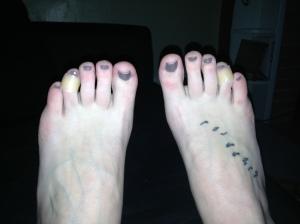 Poor toesies.