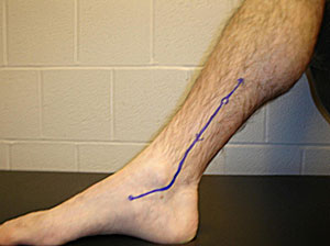 You may feel pain along this line (me, me, me!) and apparently it can be considered shin splints.  How about that?  (Source)